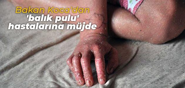 Bakan Koca'dan 'balık pulu' hastalarına müjde